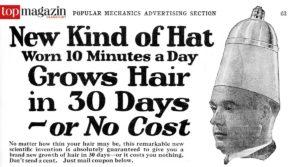 Im Kampf gegen die Glatze ließ Mann nichts unversucht - der Erfolg ließ mitunter lange auf sich warten.
