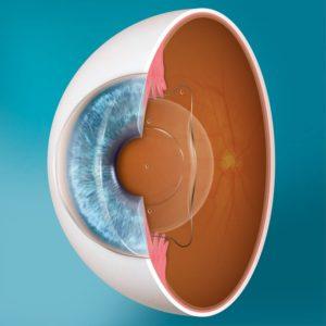 Die Evo Visian ICL-Linse wird zwischen der Iris und der natürlichen Linse platziert.
